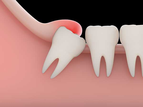 Wisdom Teeth Removal Palmerston Dental Surgery